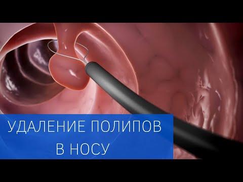 Эндоскопическое удаление полипов в носу в ЕМС