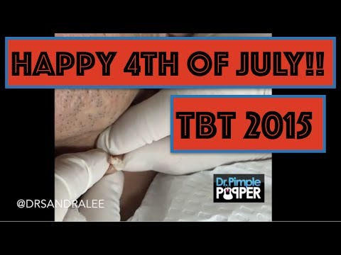 Happy July 4th Weekend:  An Ode To Independence Pops, 2015