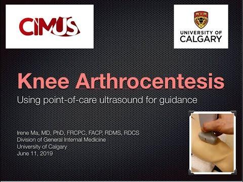 US Guided Knee Arthrocentesis