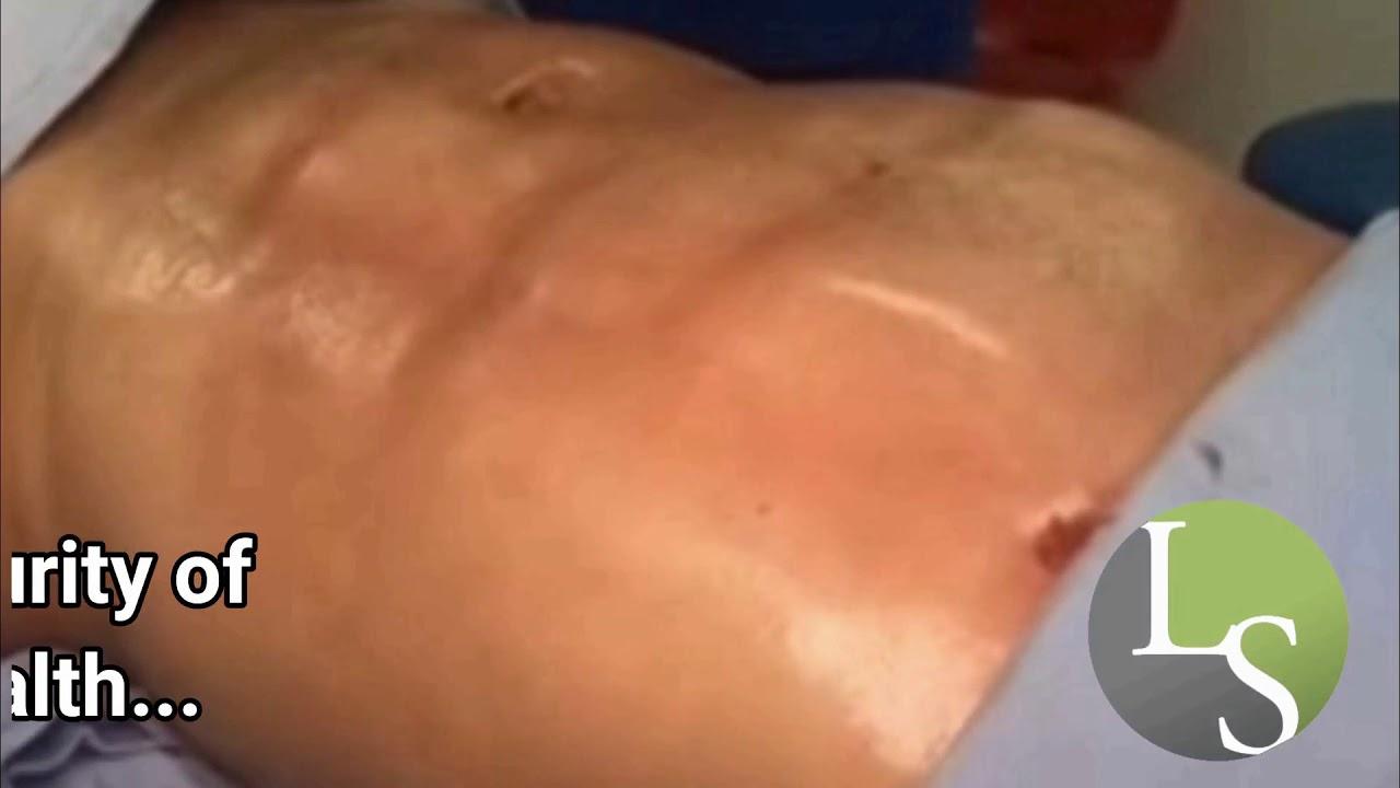 Abdominal Etching Surgery