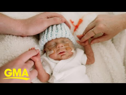 Andi and Kenny - Daily Do Good: After 100+ Days In NICU One-Pound Micro Preemie Goes Home