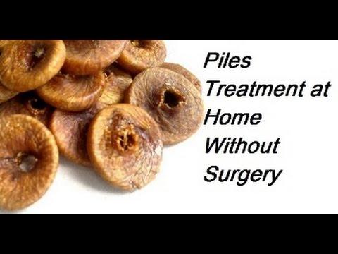 Piles Treatment at Home without Surgery - Bawaseer ka ilaj