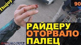 Мотоциклисту оторвало палец 18+