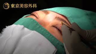 """東京美容外科統括院長""""麻生泰氏""""による《まぶたの脂肪取り》"""