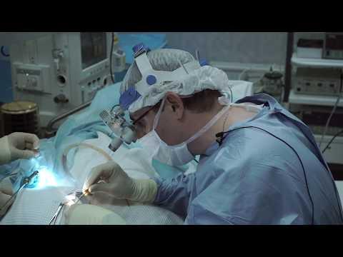 Тимпанопластика (восстановление слуха) с реконструкцией слуховых косточек. Доктор Вавин В.В.