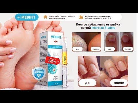 Кисточка от грибка Medifit в Березниках