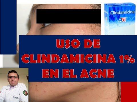USO DE CLINDAMICINA 1% EN EL  ACNÉ (CUTACLIN)