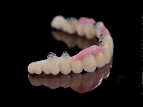 K Dental Lab-Zirkonzahn Prettau-Implant screw-retained bridge-1.mov