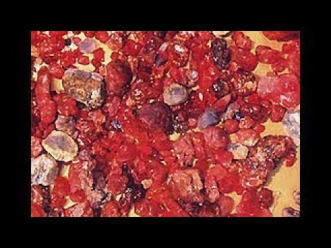 Treasure Hunting Rubies Of The Golden Triangle Gem Mining Documentary