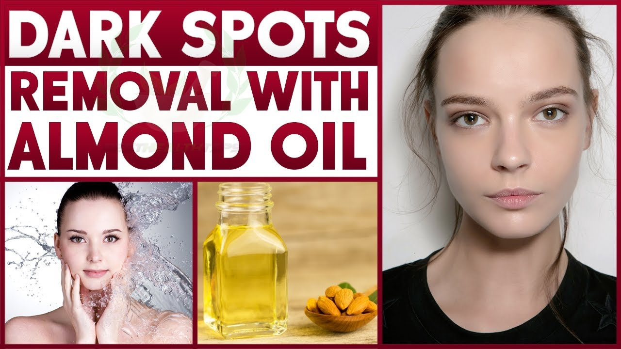 How To Remove Dark Spots   How To Clear Skin   Dark Spots ...