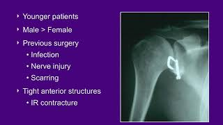 Glenohumeral Arthritis and Shoulder Arthroplasty - ABOS Orthopedic Surgery Board Exam Review