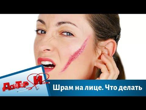Шрам на лице. Что делать | Доктор И