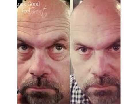 Rapid Wrinkle Repair | Instantly Ageless | Ageless | Anti ...