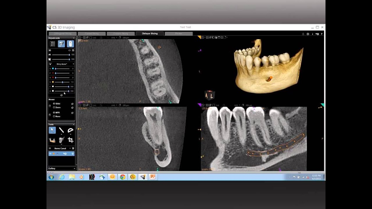 CBCT Anatomical Review of the Mandible - YouTube