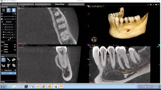 CBCT Anatomical Review of the Mandible