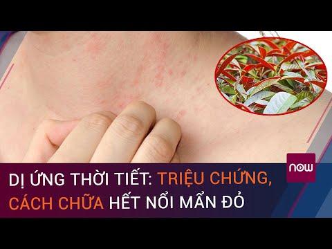 Dị ứng thời tiết: Triệu chứng, cách chữa hết nổi mẩn đỏ | VTC Now