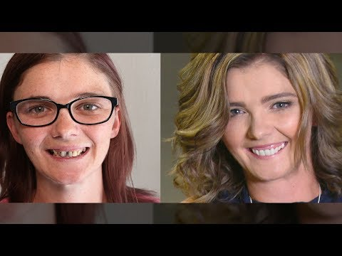 Dentist wanted 18k - She Got Extreme Smile Makeover in Spa for $800 by Brighter Image Lab