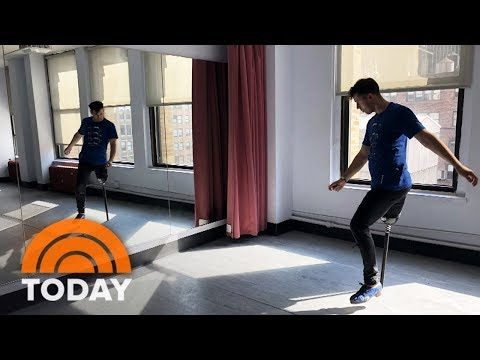 One Legged Dancer Is Still Making Movers After Cancer Diagnosis