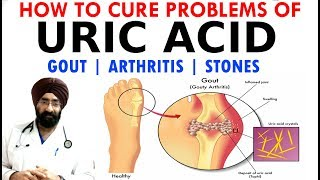HOW TO CURE - URIC ACID PROBLEMS   GOUT   ARTHRITIS   STONES   DIET & why it happens?   Dr.EDUCATION