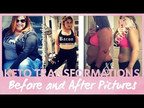 best-keto-weight-loss-transformation-pictures-|-before-and-after-result-compilation-#1