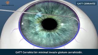 Glokom (Göz Tansiyonu) ve Dikişsiz Glokom Ameliyatı GATT cerrahisi nedir?