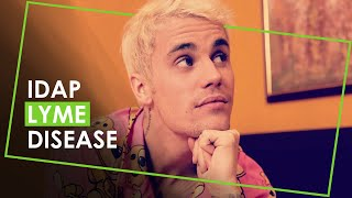 The Dark Season - Justin Bieber: Seasons.