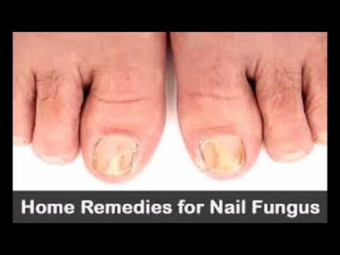 How Long Does It Take To Cure Toenail Fungus With Apple Cider Vinegar