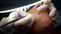 Electrolysis For Lip Hair