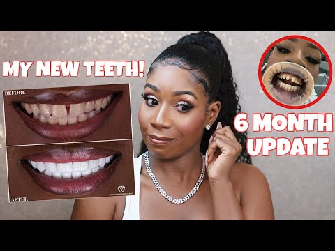 DO I REGRET GETTING VENEERS IN TURKEY?! *THE TRUTH* | 6 Month Update Q&A