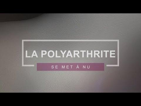 Image de soi, Regard de l'autre... La Polyarthrite se met à nu