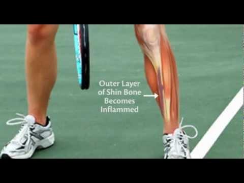 do-you-suffer-from-shin-splints?