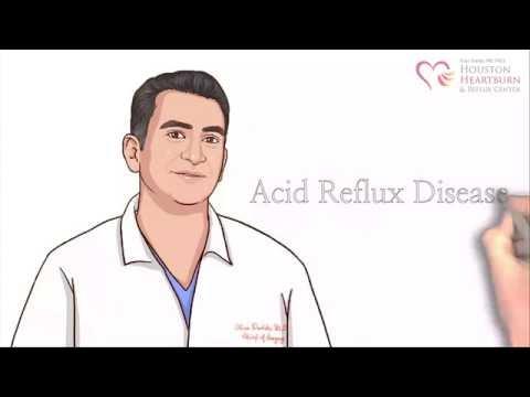 Houston Heartburn Center - GERD, Heartburn and Acid Reflux