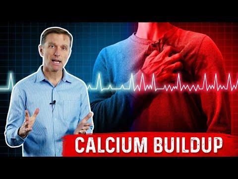 Arrhythmias Are Excess Calcium