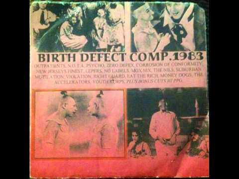 N.O.T.A---DISCONNECTED/DUMBSHIT  1983 BIRTH DEFECT COMP