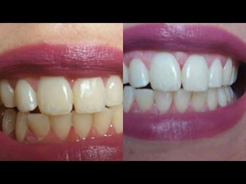 Como Deixar Seus Dente Brancos Em 3 Dias Com 1 Ingrediente