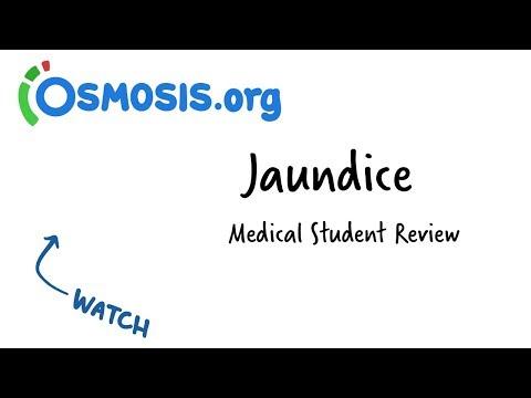 Jaundice | Clinical Presentation