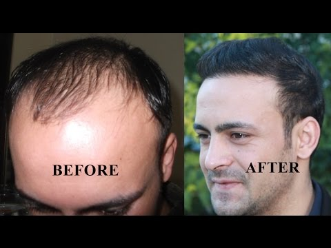 Hair transplant before and  after Hair Restoration Turkey - Istanbul