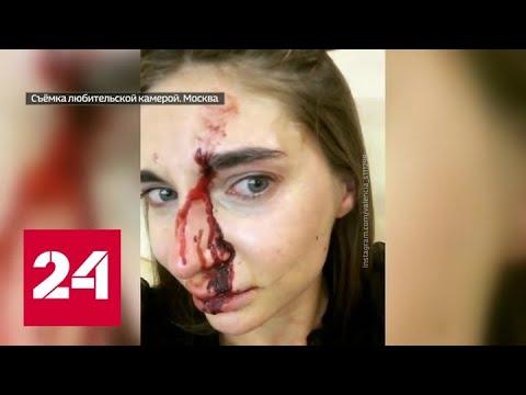 Бьюти-блогера жестоко избили в косметологическом салоне за простой вопрос - Россия 24