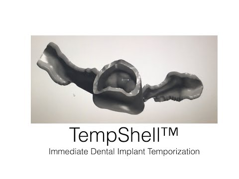TempShell Immediate Implant Temporization Technique