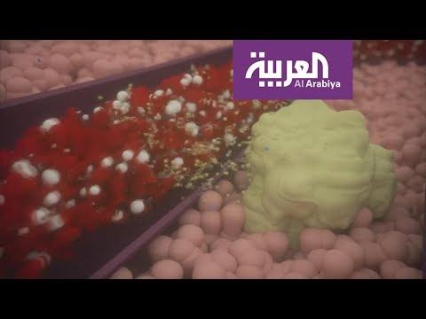 بدء اختبار لقاح شامل ضد السرطان!  - 00:21-2018 / 6 / 21