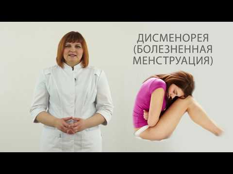 болезненные месячные - дисменорея