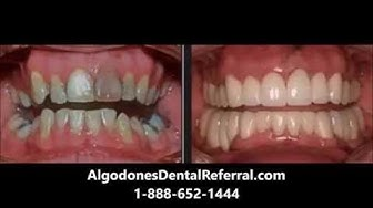 Affordable Dental Implants Indianapolis - Affordable Dental Implants Indianapolis Indiana