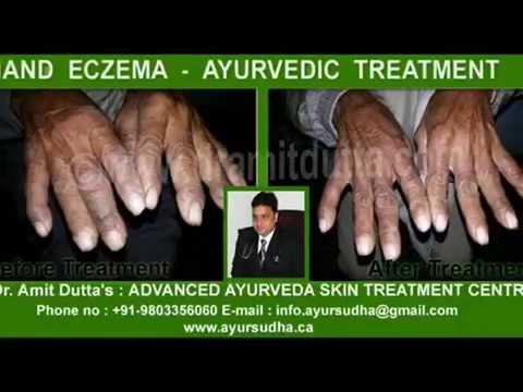 Hand Eczema Treatment Ayur Sudha Ayurveda Skin Treatment Centre