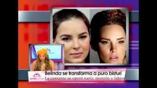 Famosas antes y después de una cirugía de nariz - Gabriela Natale