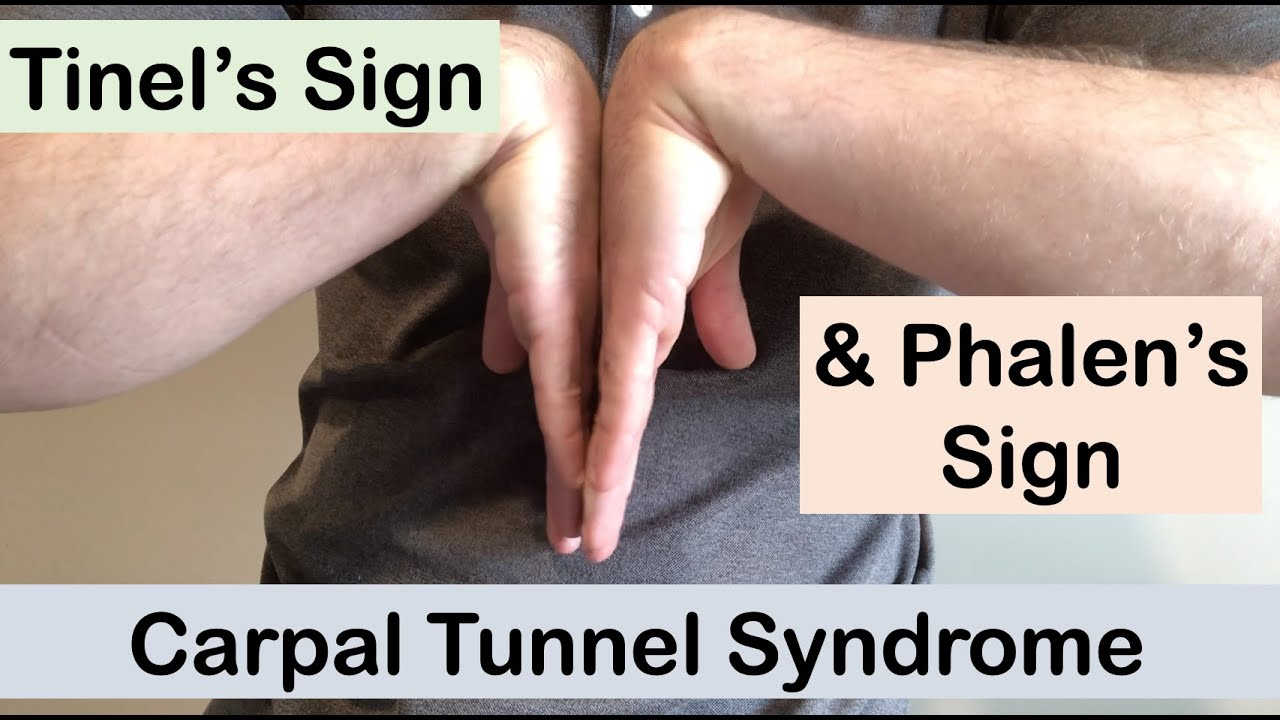 Download Carpal tunnel syndrome | Tinel's sign and Phalen's sign | Clinical Examination
