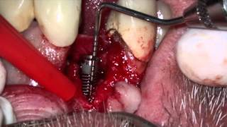 Поставяне на имплант