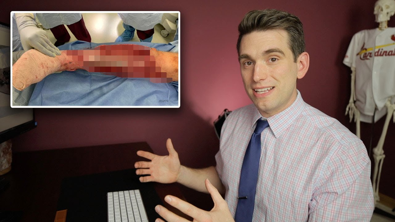 Doctor Reacts To Alex Smith Project 11 Espn Nfl Documentary And Teaches You More Youtube