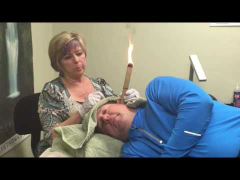 Ear Candling Demonstration Ear Candle at Home Wax Removal Ear Infection Treatment