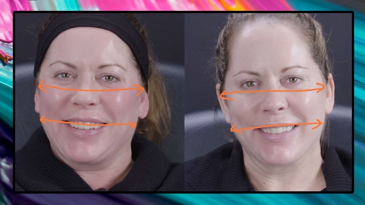 How Fillers Can Actually Make Your Face Look Slimmer | Dr Sarah Tonks