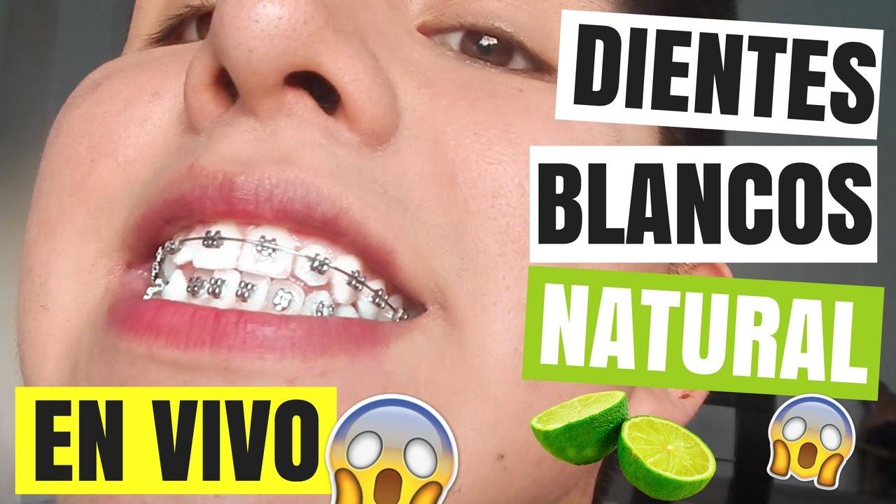 Como blanquear mis dientes con limon y sal